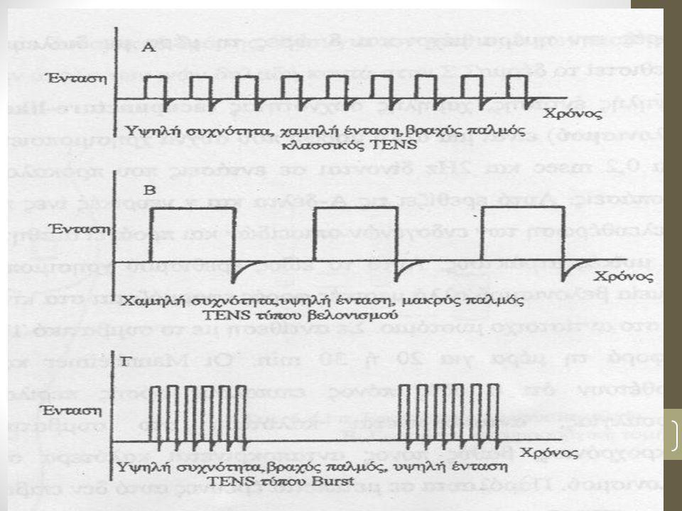 Πρωτόκολλο (ii) Παραγωγή ενδογενών οπιοειδών -Ένταση του ρεύματος υψηλή (να πλησιάζει επίπεδα ενόχλησης) -Μυϊκή σύσπαση είναι αποδεκτή -Διάρκεια παλμού 200μsec με 10msec.