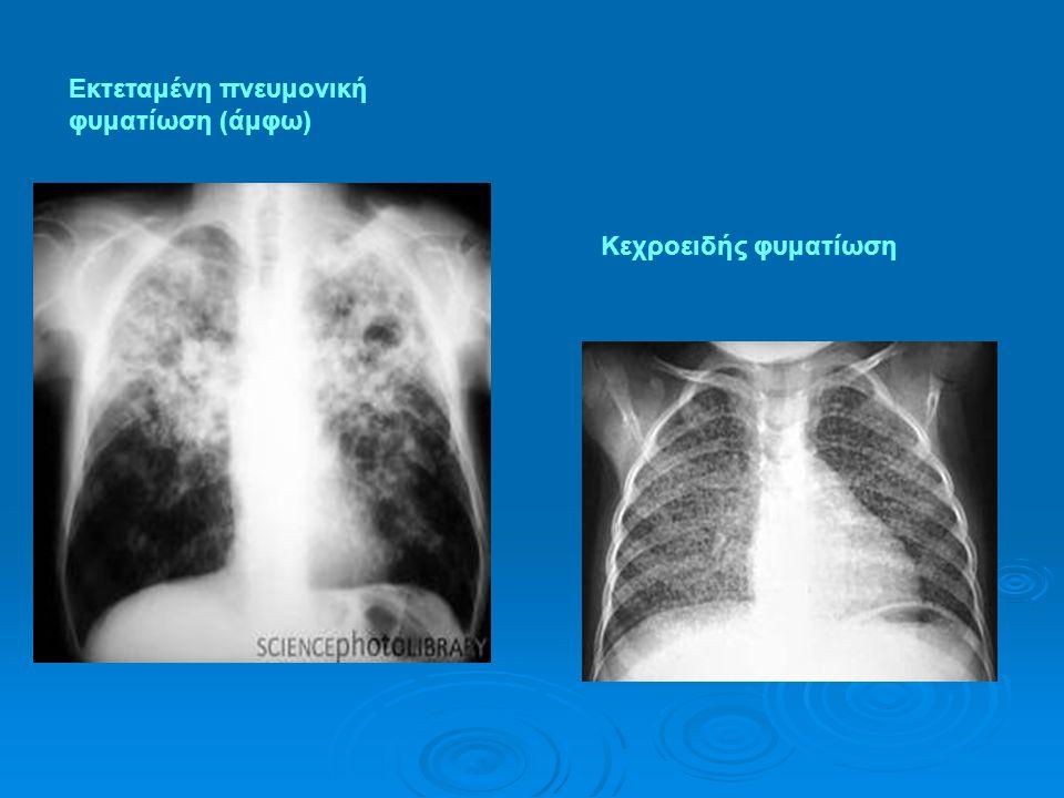 Εκτεταμένη πνευμονική φυματίωση (άμφω) Κεχροειδής φυματίωση