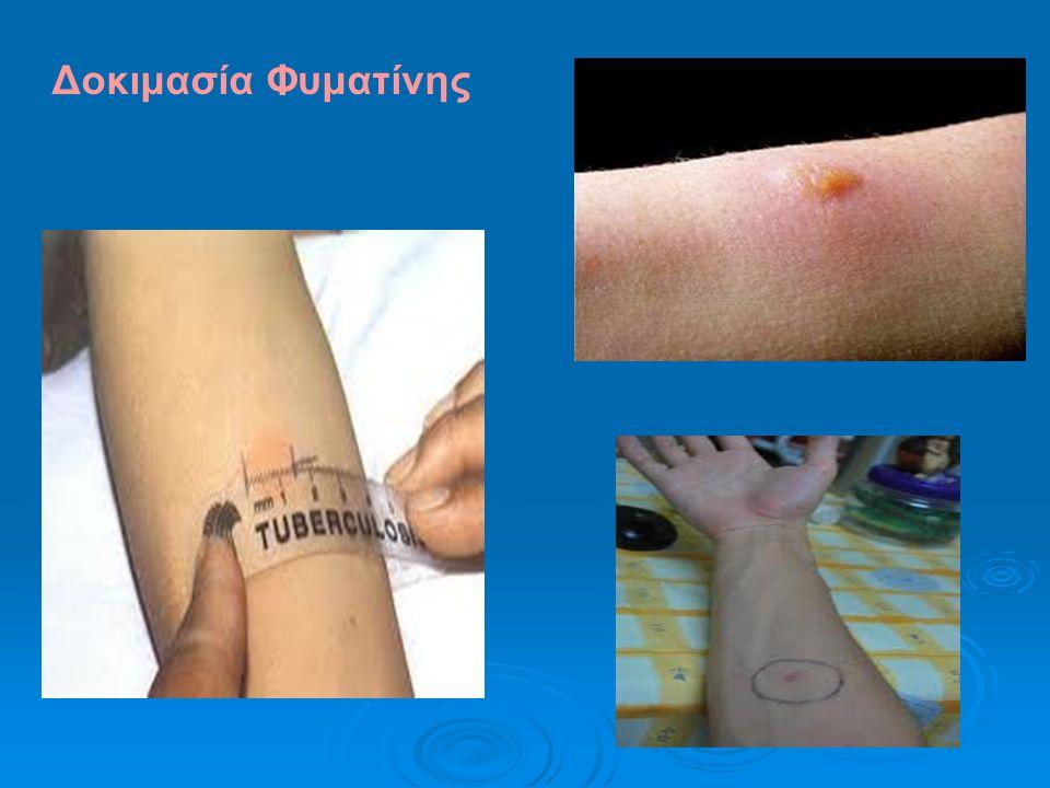 Δοκιμασία Φυματίνης