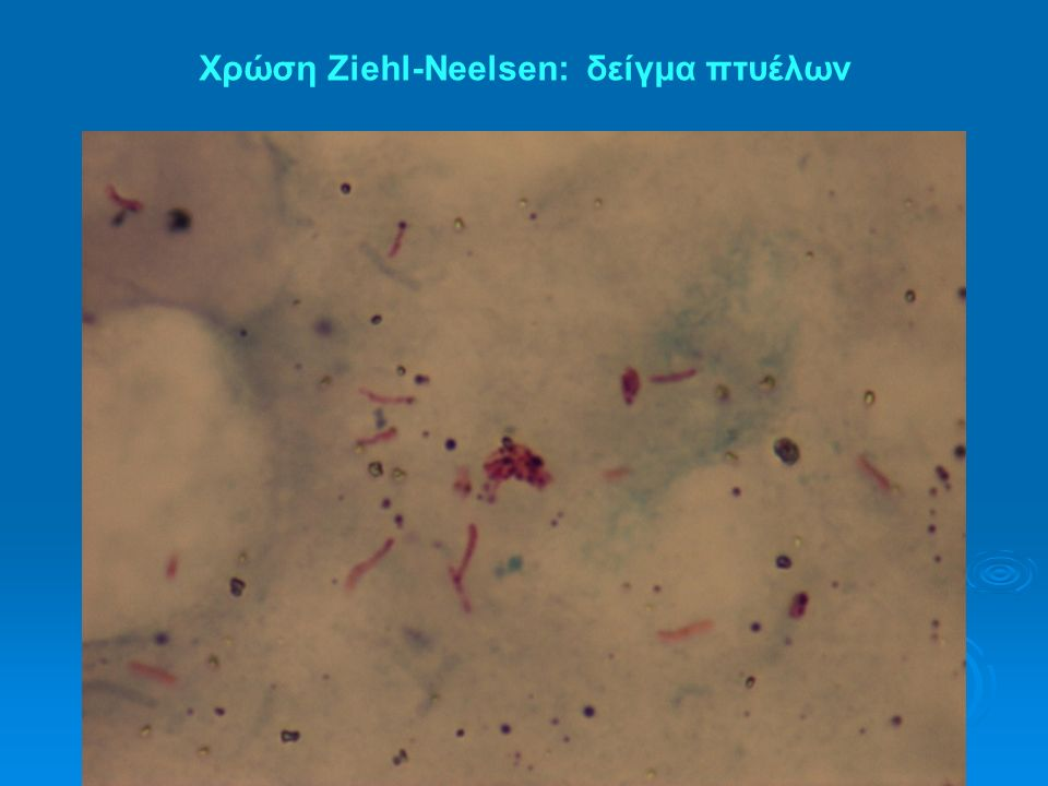 Χρώση Ziehl-Neelsen: δείγμα πτυέλων