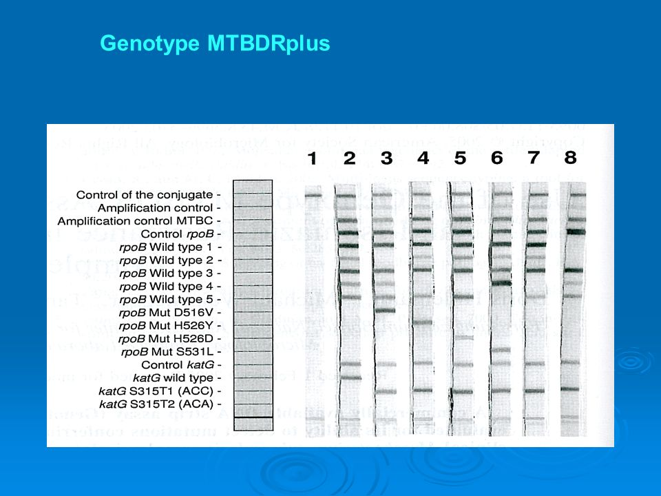 Genotype MTBDRplus