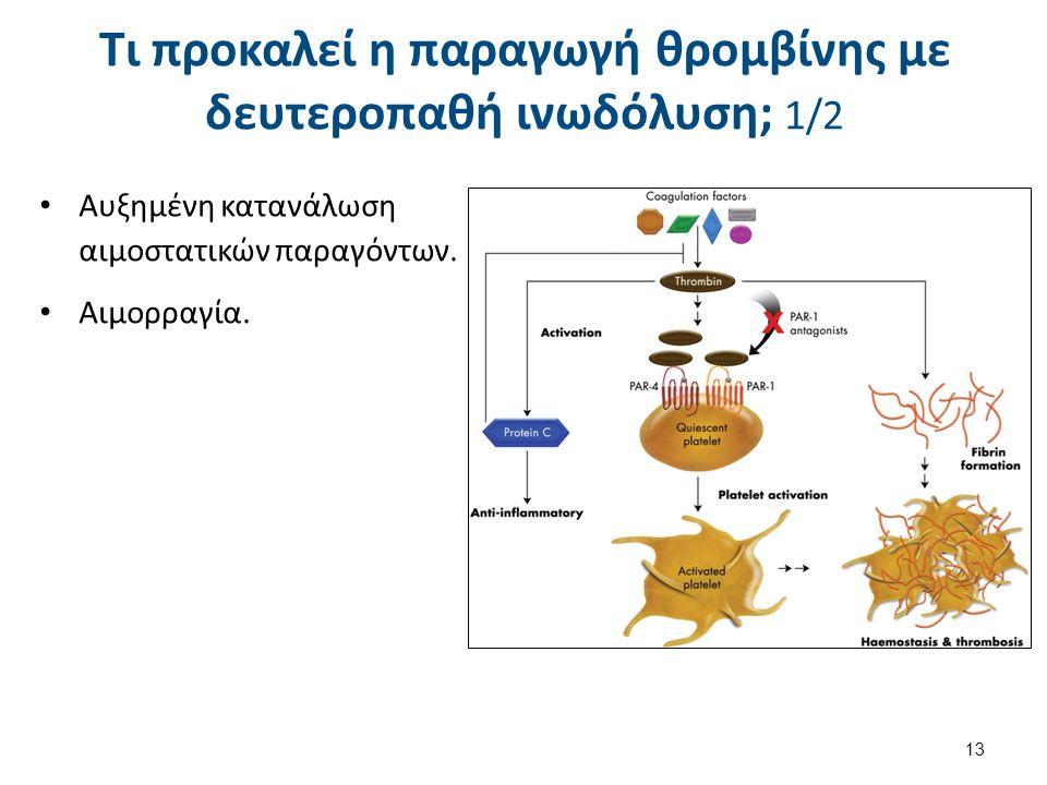 Τι προκαλεί η παραγωγή θρομβίνης με δευτεροπαθή ινωδόλυση; 1/2 Αυξημένη κατανάλωση αιμοστατικών παραγόντων.