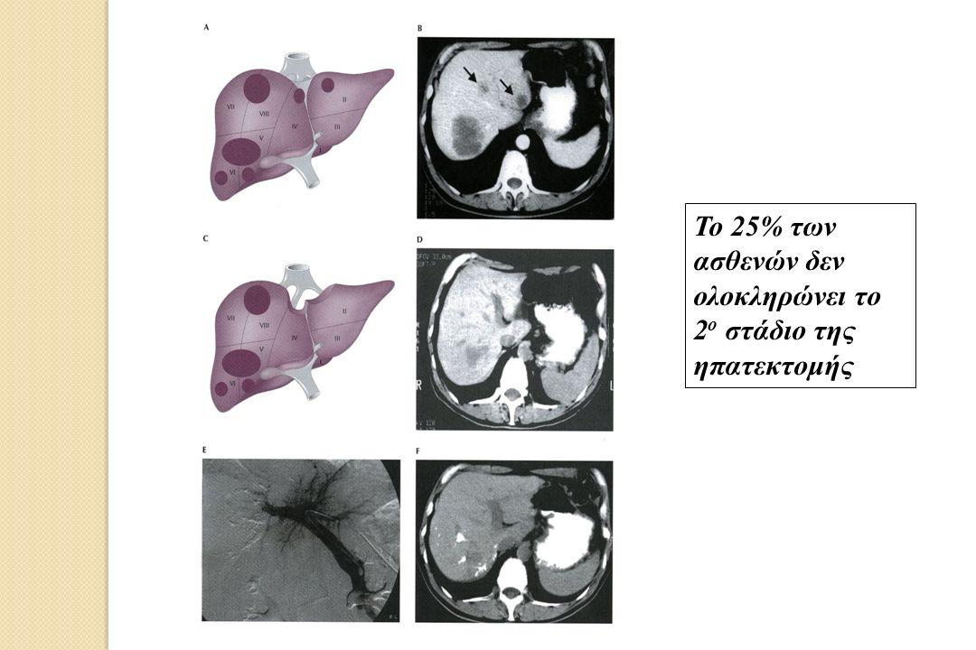 Το 25% των ασθενών δεν ολοκληρώνει το 2 ο στάδιο της ηπατεκτομής