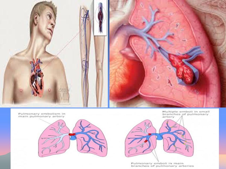 Πνευμονική εμβολεκτομή Στόχος της εμβολεκτομής είναι η αφαίρεση του θρόμβου από την πνευμονική αρτηρία.