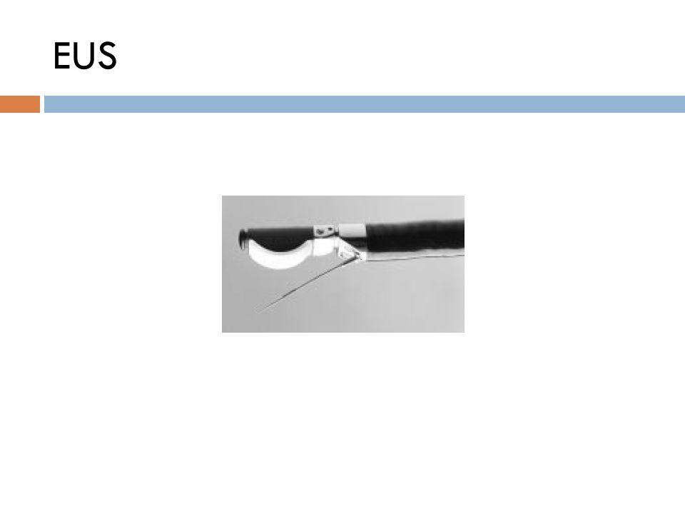 Εξετάσεις Ελέγχου  Ακτινογραφία Θώρακα  Αξονική Τομογραφία  Σπινθηρογράφημα Οστών  Pet Scan  Βρογχοσκόπηση  FNA  Ιστολογική