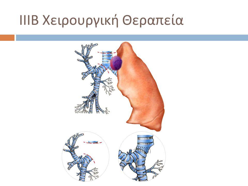 ΙΙΙΒ Χειρουργική Θεραπεία  ± Λοβεκτομή ή Πνευμονεκτομή  Χειρουργική Θνητότητα 10 -15%  Sleeve pneumonectomy  Χειρουργική Θνητότητα 2-4 Χ της Πνευμονεκτομής  5- ετής επιβίωση 20% Εκτομή Τρόπιδας