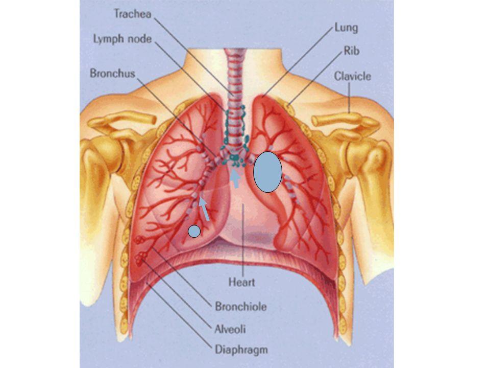 Σταδιοποίηση  Συσχέτιση μεταξύ της ανατομικής έκτασης της νόσου και της πρόγνωσης