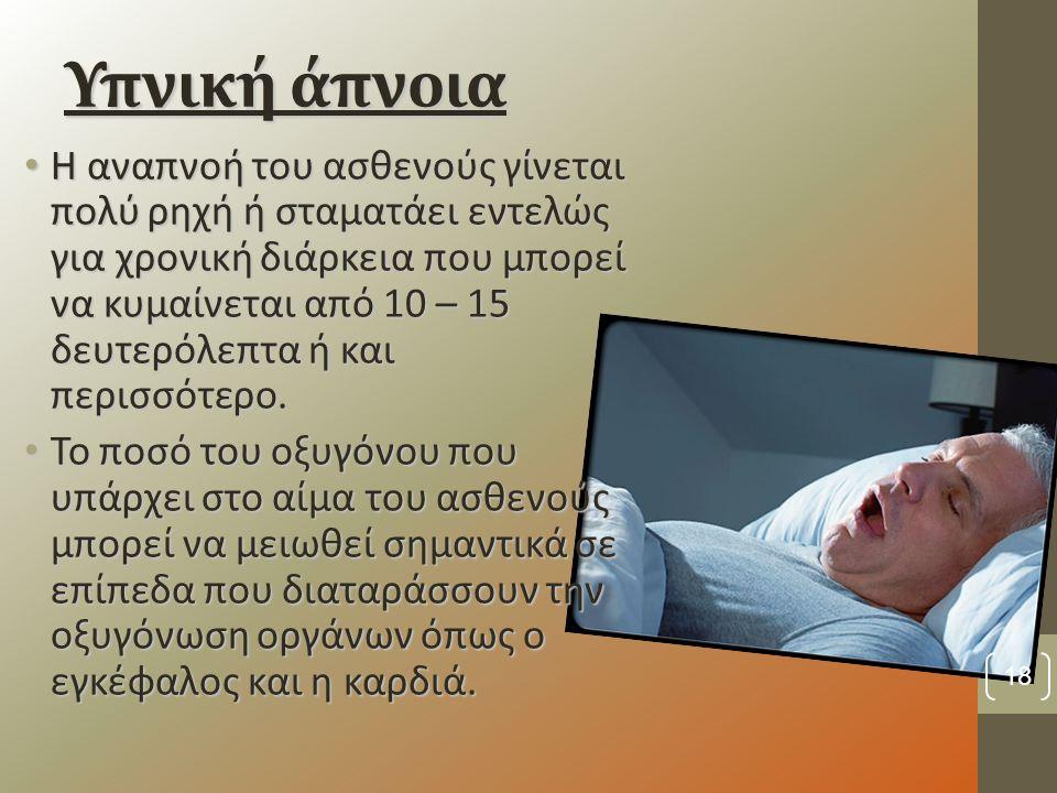 Υπνική άπνοια Η αναπνοή του ασθενούς γίνεται πολύ ρηχή ή σταματάει εντελώς για χρονική διάρκεια που μπορεί να κυμαίνεται από 10 – 15 δευτερόλεπτα ή και περισσότερο.