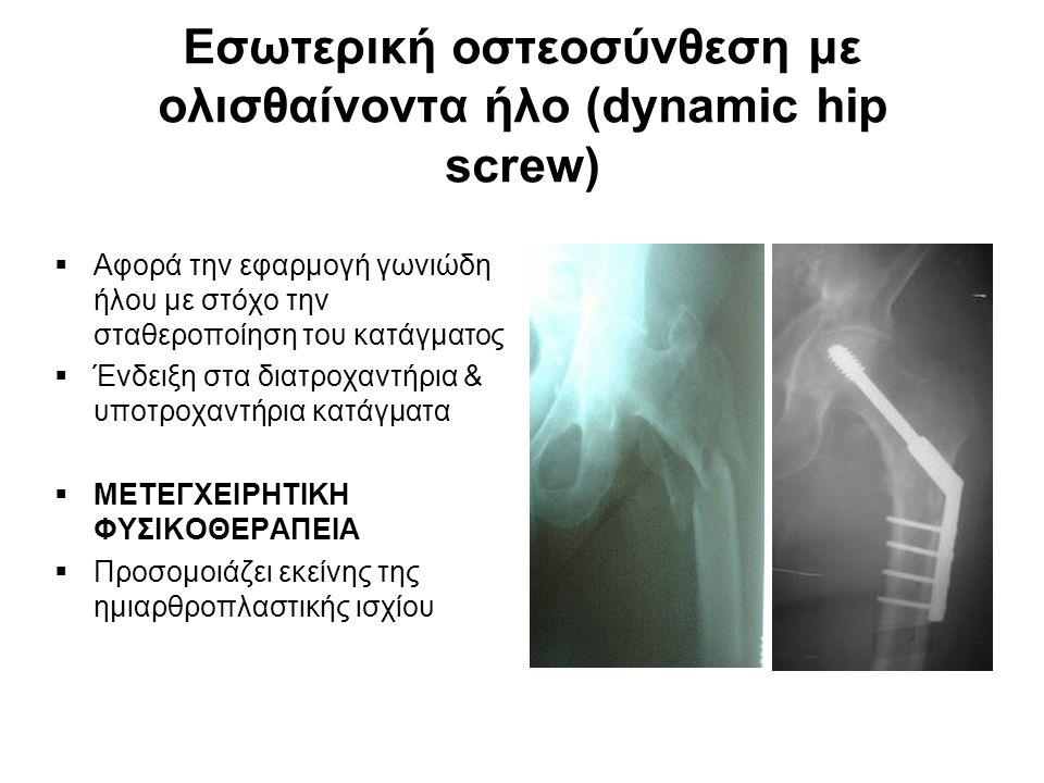Εσωτερική οστεοσύνθεση με ολισθαίνοντα ήλο (dynamic hip screw)  Αφορά την εφαρμογή γωνιώδη ήλου με στόχο την σταθεροποίηση του κατάγματος  Ένδειξη στα διατροχαντήρια & υποτροχαντήρια κατάγματα  ΜΕΤΕΓΧΕΙΡΗΤΙΚΗ ΦΥΣΙΚΟΘΕΡΑΠΕΙΑ  Προσομοιάζει εκείνης της ημιαρθροπλαστικής ισχίου
