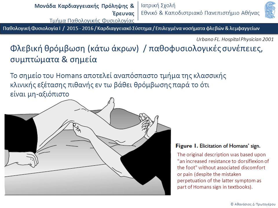Μονάδα Καρδιαγγειακής Πρόληψης & Έρευνας Τμήμα Παθολογικής Φυσιολογίας Ιατρική Σχολή Εθνικό & Καποδιστριακό Πανεπιστήμιο Αθήνας © Αθανάσιος Δ Πρωτογέρου Φλεβική θρόμβωση (κάτω άκρων) / παθοφυσιολογικές συνέπειες, συμπτώματα & σημεία Παθολογική Φυσιολογία Ι / 2015 - 2016 / Καρδιαγγειακό Σύστημα / Επιλεγμένα νοσήματα φλεβών & λεμφαγγείων Το σημείο του Homans αποτελεί αναπόσπαστο τμήμα της κλασσικής κλινικής εξέτασης πιθανής εν τω βάθει θρόμβωσης παρά το ότι είναι μη-αξιόπιστο Urbano FL.