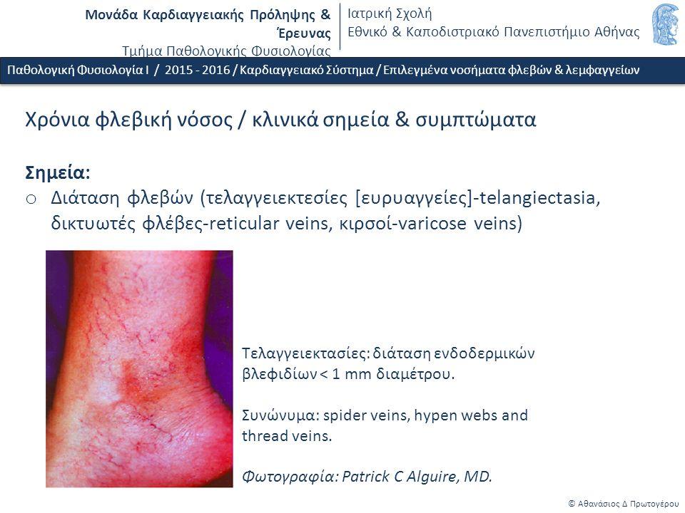 Μονάδα Καρδιαγγειακής Πρόληψης & Έρευνας Τμήμα Παθολογικής Φυσιολογίας Ιατρική Σχολή Εθνικό & Καποδιστριακό Πανεπιστήμιο Αθήνας © Αθανάσιος Δ Πρωτογέρου Οίδημα / παθοφυσιολογικές συνέπειες οιδήματος σε διαφορετικούς ιστούς o Δέρμα - λύση συνέχειας δέρματος - δερματικές λοιμώξεις o Πνευμονικό οίδημα - διαταραχή οξυγόνωσης o Οίδημα εντερικού βλενογόνου - διαταραχή απορρόφησης (όταν η διάμεση πίεση αυξάνεται > 5 mmHg) o Εγκεφαλικό οίδημα - εστιακή νευρολογική συμπτωματολογία ή/και έκπτωση επιπέδου συνείδησης Παθολογική Φυσιολογία Ι / 2015 - 2016 / Καρδιαγγειακό Σύστημα / Επιλεγμένα νοσήματα φλεβών & λεμφαγγείων Scallan J et al: (chapter 4) Pathophysiology of edema formation.
