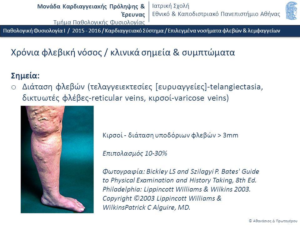 Μονάδα Καρδιαγγειακής Πρόληψης & Έρευνας Τμήμα Παθολογικής Φυσιολογίας Ιατρική Σχολή Εθνικό & Καποδιστριακό Πανεπιστήμιο Αθήνας © Αθανάσιος Δ Πρωτογέρου Φλεβική θρόμβωση (κάτω άκρων) / παθοφυσιολογικές συνέπειες, συμπτώματα & σημεία o Άμεσες τοπικές συνέπειες - Οξείας πλήρης ή μερική απόφραξη φλέβας - Φλεβική υπέρταση, oξεία φλεβική ανεπάρκεια - Ετερόπλευρη εγκατάσταση οίδηματος (κάτω από το επίπεδο της θρόμβωσης), τοπικό άλγος και αύξηση θερμότητας, θετικό σημείο Homans o Άμεσες απομακρυσμένες συνέπειες - Απόσπαση θρόμβου - εμβολή (πνευμονική) εμβολή o Απώτερες τοπικές συνέπειες - Χρόνια φλεβική νόσος Παθολογική Φυσιολογία Ι / 2015 - 2016 / Καρδιαγγειακό Σύστημα / Επιλεγμένα νοσήματα φλεβών & λεμφαγγείων