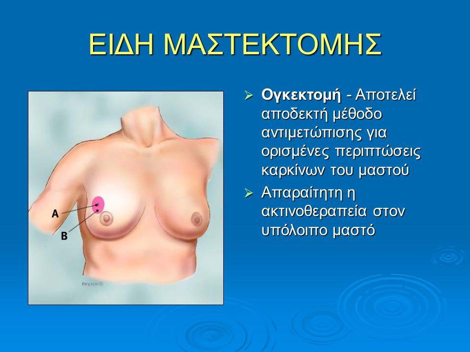 ΕΙΔΗ ΜΑΣΤΕΚΤΟΜΗΣ  Ογκεκτομή - Αποτελεί αποδεκτή μέθοδο αντιμετώπισης για ορισμένες περιπτώσεις καρκίνων του μαστού  Απαραίτητη η ακτινοθεραπεία στον