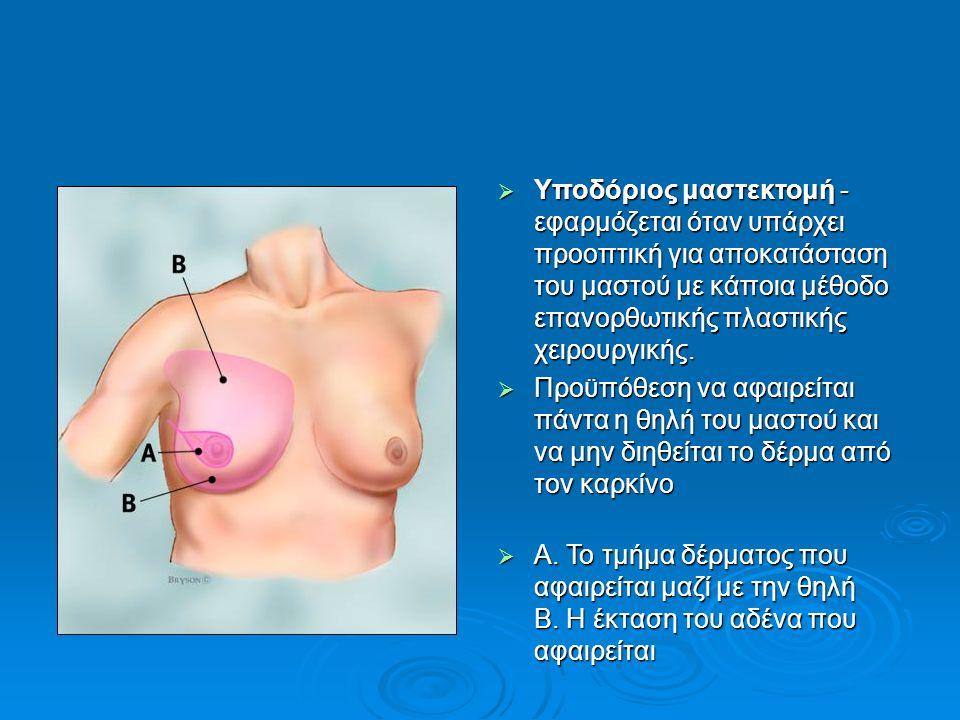  Υποδόριος μαστεκτομή - εφαρμόζεται όταν υπάρχει προοπτική για αποκατάσταση του μαστού με κάποια μέθοδο επανορθωτικής πλαστικής χειρουργικής.  Προϋπ