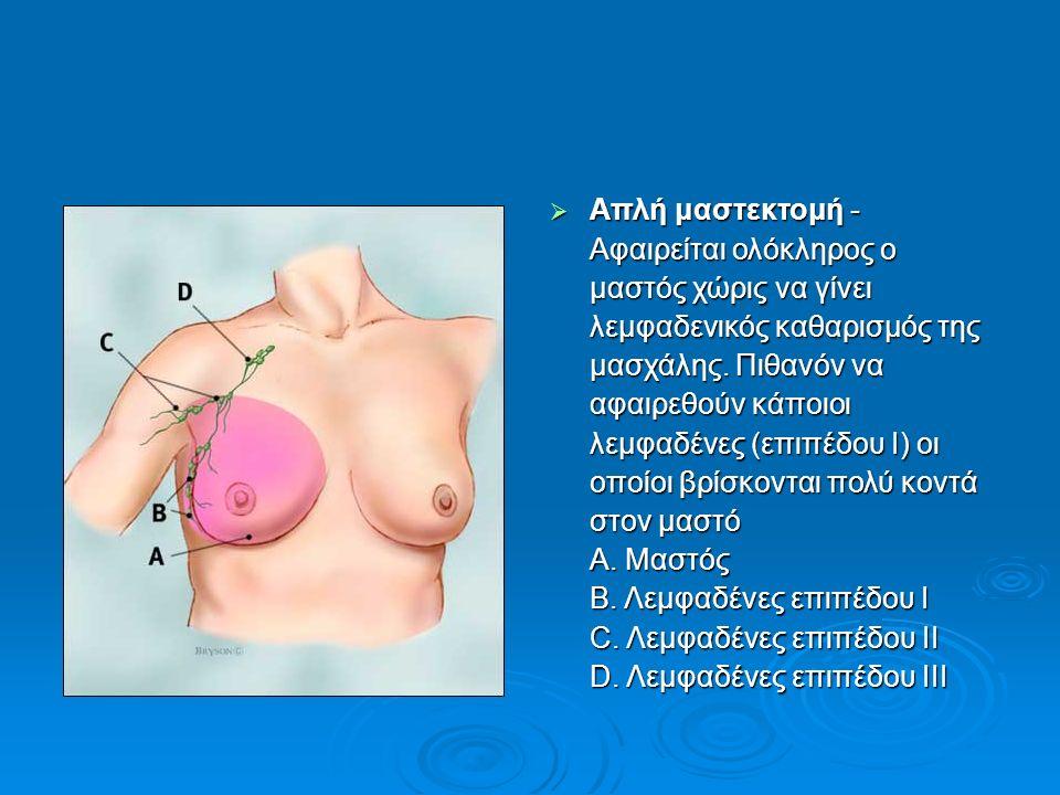  Απλή μαστεκτομή - Αφαιρείται ολόκληρος ο μαστός χώρις να γίνει λεμφαδενικός καθαρισμός της μασχάλης. Πιθανόν να αφαιρεθούν κάποιοι λεμφαδένες (επιπέ