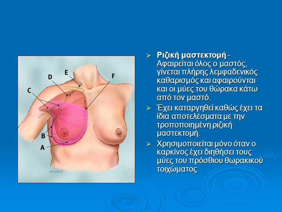  Ριζική μαστεκτομή - Αφαιρείται όλος ο μαστός, γίνεται πλήρης λεμφαδενικός καθαρισμός και αφαιρούνται και οι μύες του θώρακα κάτω από τον μαστό.  Έχ