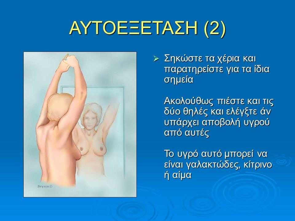 ΑΥΤΟΕΞΕΤΑΣΗ (2)  Σηκώστε τα χέρια και παρατηρείστε για τα ίδια σημεία Ακολούθως πιέστε και τις δύο θηλές και ελέγξτε άν υπάρχει αποβολή υγρού από αυτ