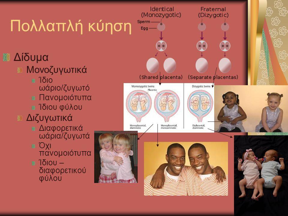 Πολλαπλή κύηση Δίδυμα Μονοζυγωτικά Ίδιο ωάριο/ζυγωτό Πανομοιότυπα Ίδιου φύλου Διζυγωτικά Διαφορετικά ωάρια/ζυγωτά Όχι πανομοιότυπα Ίδιου – διαφορετικού φύλου
