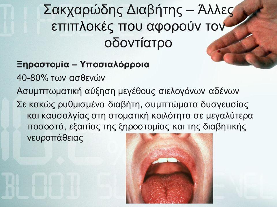 Σακχαρώδης Διαβήτης – Άλλες επιπλοκές που αφορούν τον οδοντίατρο Ξηροστομία – Υποσιαλόρροια 40-80% των ασθενών Ασυμπτωματική αύξηση μεγέθους σιελογόνων αδένων Σε κακώς ρυθμισμένο διαβήτη, συμπτώματα δυσγευσίας και καυσαλγίας στη στοματική κοιλότητα σε μεγαλύτερα ποσοστά, εξαιτίας της ξηροστομίας και της διαβητικής νευροπάθειας