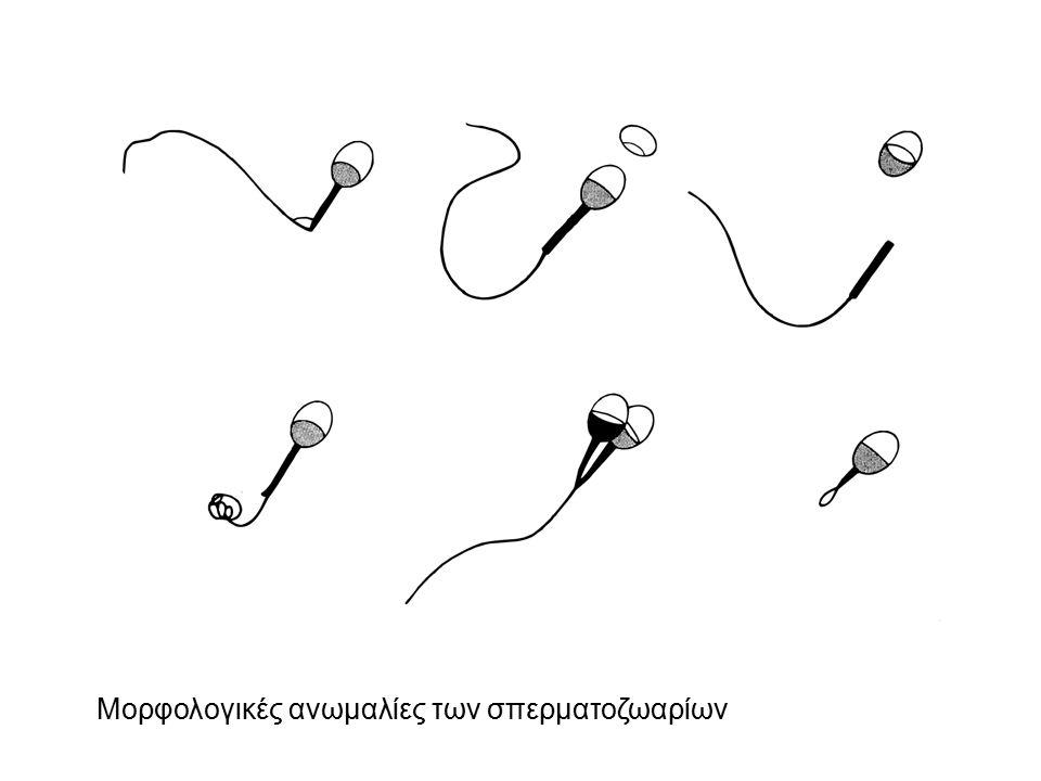 Μορφολογικές ανωμαλίες των σπερματοζωαρίων