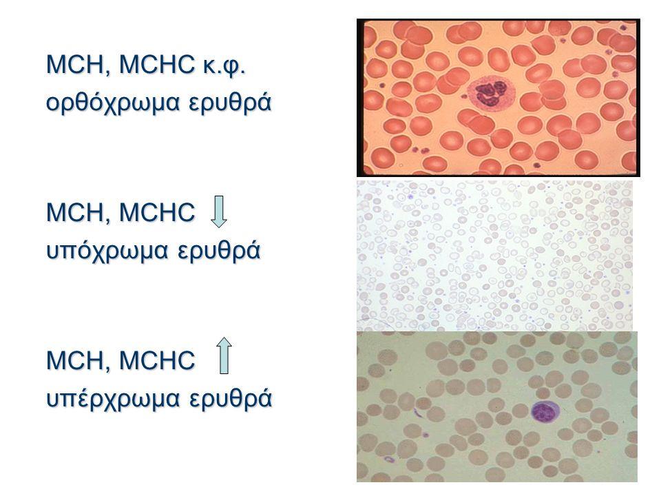 MCH, MCHC κ.φ. ορθόχρωμα ερυθρά MCH, MCHC υπόχρωμα ερυθρά MCH, MCHC υπέρχρωμα ερυθρά