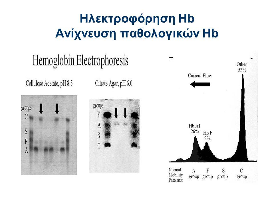 Ηλεκτροφόρηση Hb Aνίχνευση παθολογικών Hb
