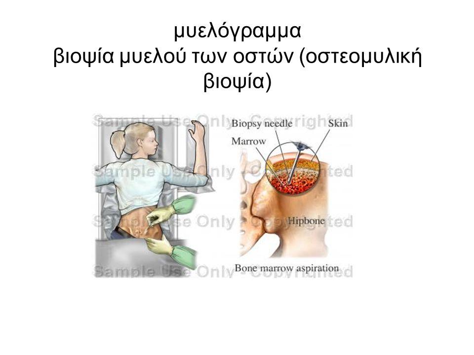 μυελόγραμμα βιοψία μυελού των οστών (οστεομυλική βιοψία)