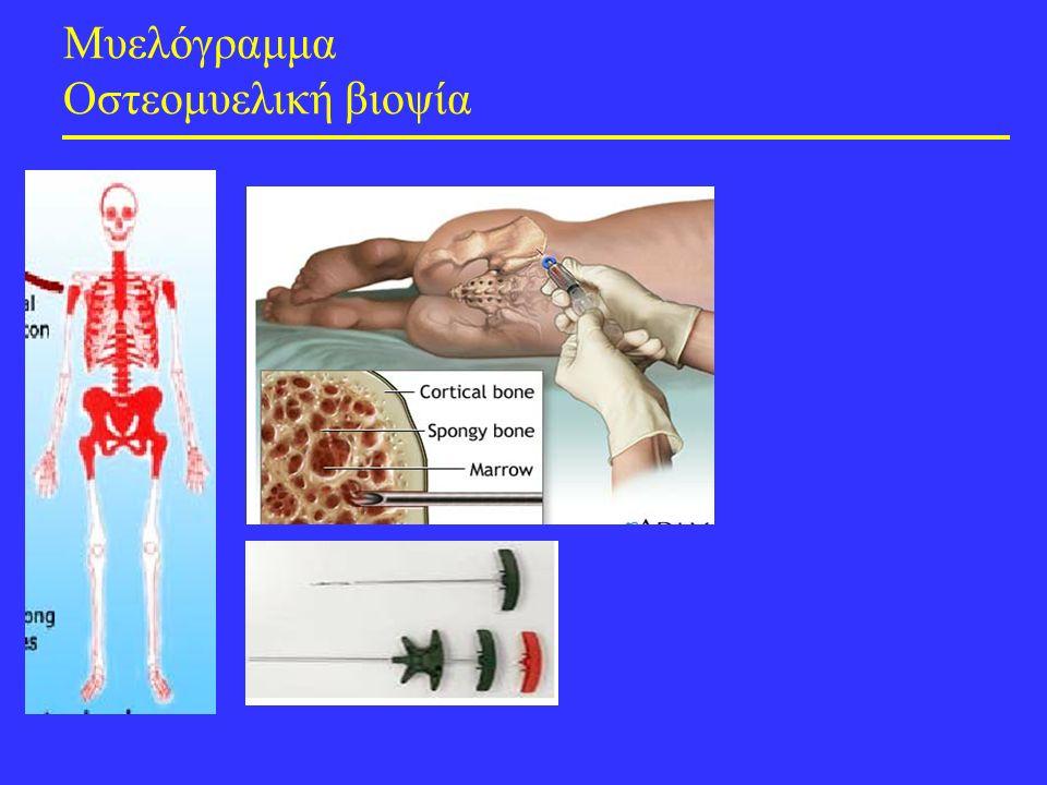 Μυελόγραμμα Οστεομυελική βιοψία