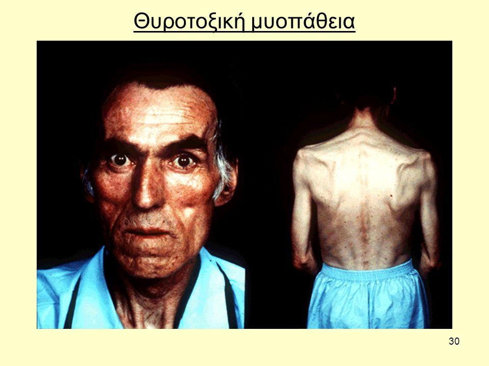 30 Θυροτοξική μυοπάθεια