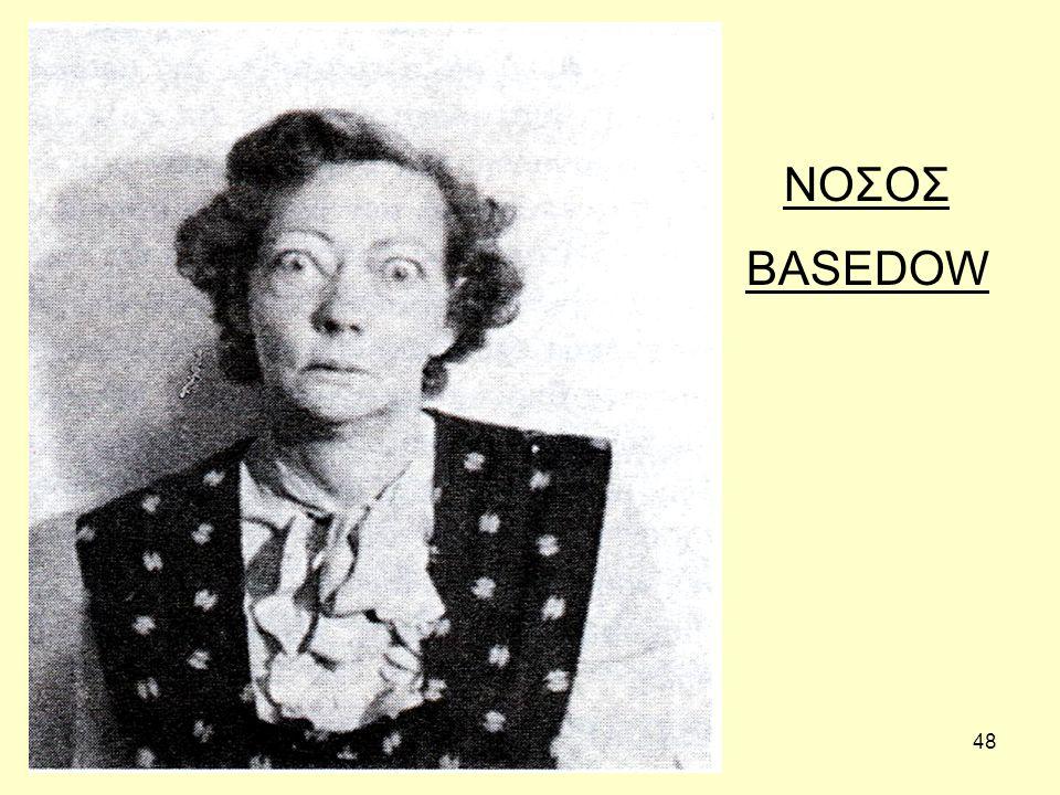 48 ΝΟΣΟΣ BASEDOW