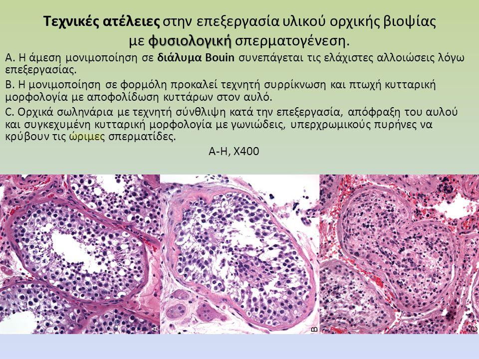 Τεχνικές ατέλειες στην επεξεργασία υλικού ορχικής βιοψίας φυσιολογική με φυσιολογική σπερματογένεση.