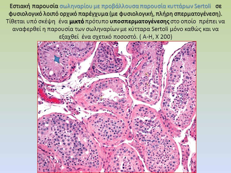 Εστιακή παρουσία σωληναρίου με προβάλλουσα παρουσία κυττάρων Sertoli σε φυσιολογικό λοιπό ορχικό παρέγχυμα (με φυσιολογική, πλήρη σπερματογένεση). μικ