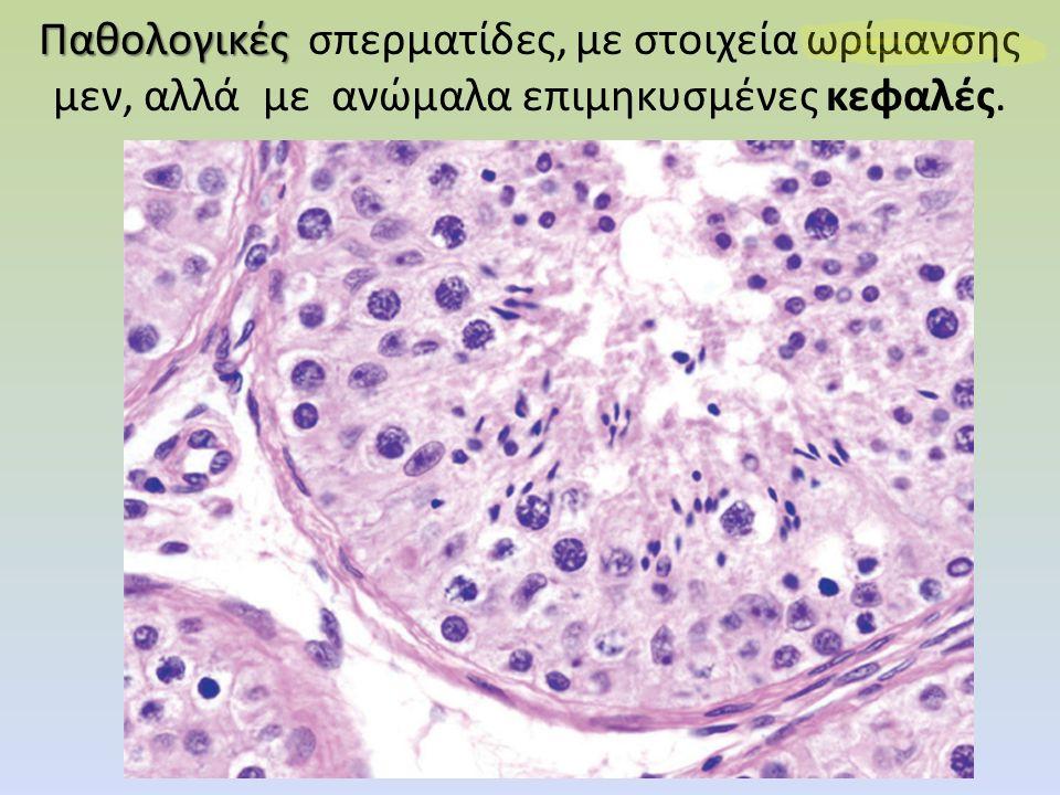 Παθολογικές Παθολογικές σπερματίδες, με στοιχεία ωρίμανσης μεν, αλλά με ανώμαλα επιμηκυσμένες κεφαλές.