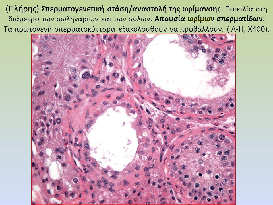 (Πλήρης) Σπερματογενετική στάση/αναστολή της ωρίμανσης. Ποικιλία στη διάμετρο των σωληναρίων και των αυλών. Απουσία ωρίμων σπερματίδων. Τα πρωτογενή σ