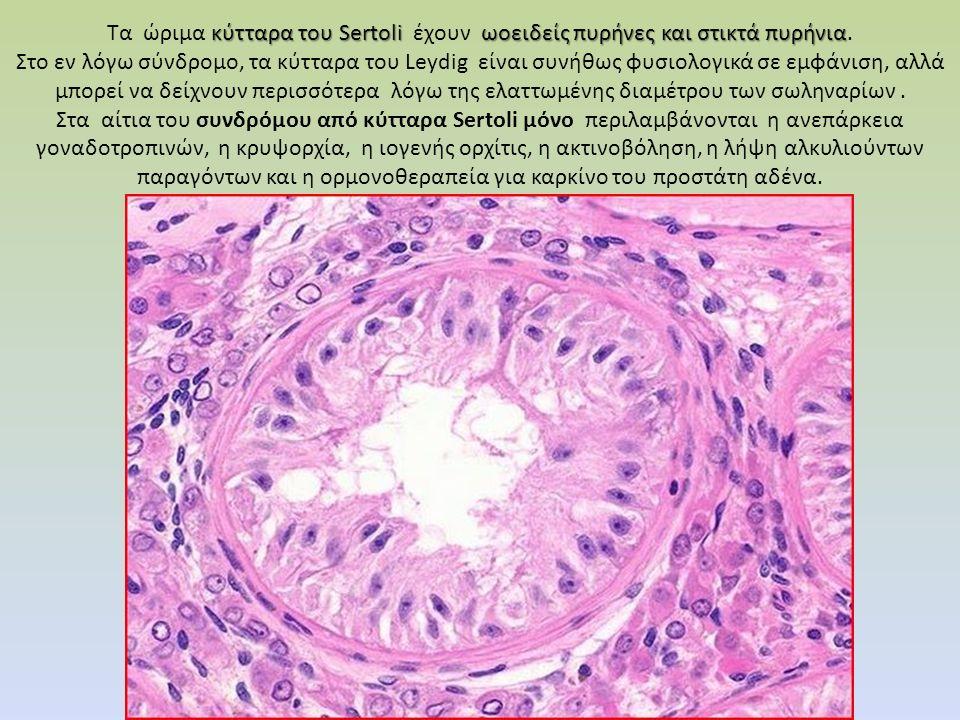 κύτταρα του Sertoli ωοειδείς πυρήνες και στικτά πυρήνια Τα ώριμα κύτταρα του Sertoli έχουν ωοειδείς πυρήνες και στικτά πυρήνια. Στο εν λόγω σύνδρομο,