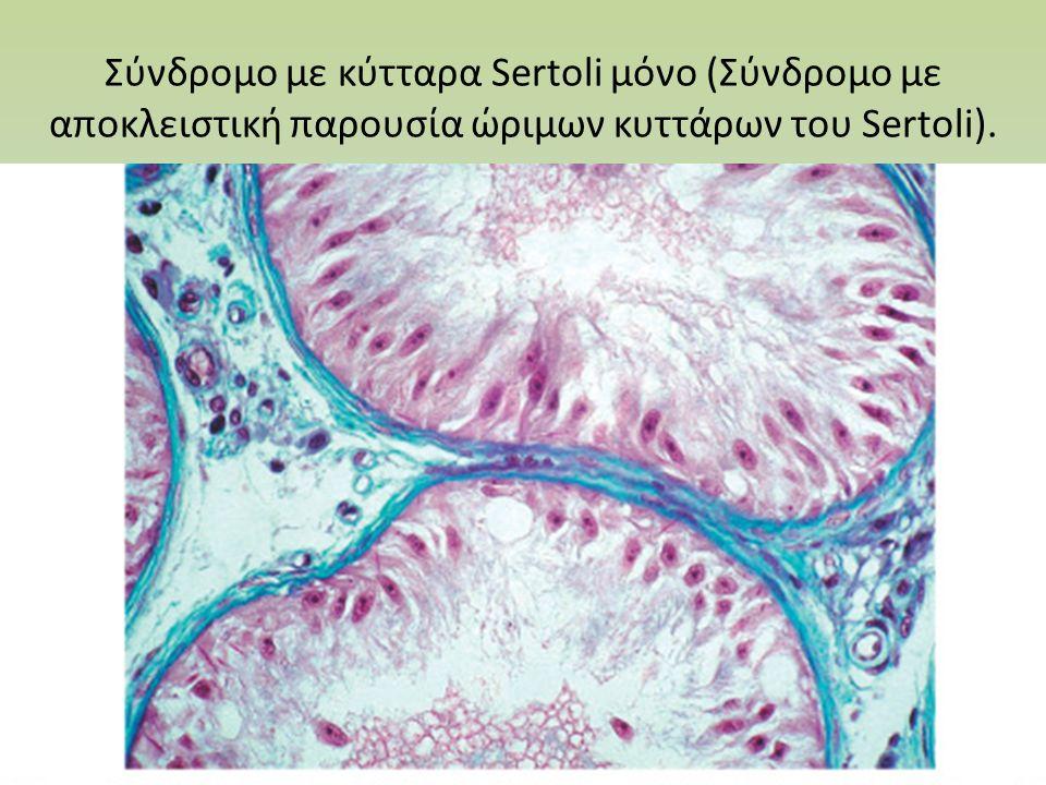 Σύνδρομο με κύτταρα Sertoli μόνο (Σύνδρομο με αποκλειστική παρουσία ώριμων κυττάρων του Sertoli).