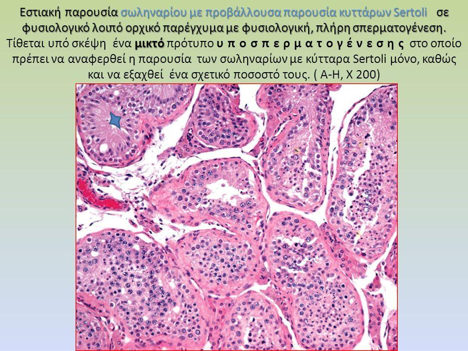 Εστιακή παρουσία σωληναρίου με προβάλλουσα παρουσία κυττάρων Sertoli σε φυσιολογικό λοιπό ορχικό παρέγχυμα με φυσιολογική, πλήρη σπερματογένεση.