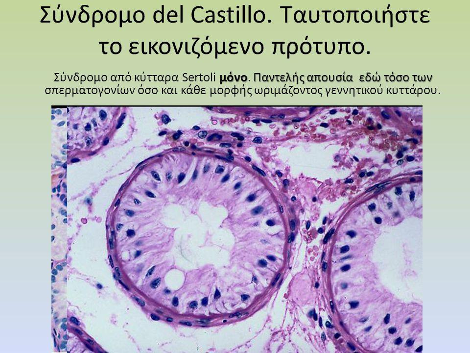 Σύνδρομο del Castillo. Tαυτοποιήστε το εικονιζόμενο πρότυπο. μόνοΠαντελής απουσία εδώ τόσο των Σύνδρομο από κύτταρα Sertoli μόνο. Παντελής απουσία εδώ