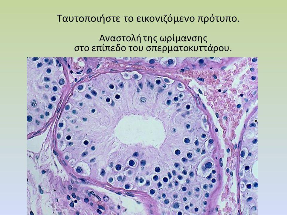 Tαυτοποιήστε το εικονιζόμενο πρότυπο Tαυτοποιήστε το εικονιζόμενο πρότυπο. Αναστολή της ωρίμανσης στο επίπεδο του σπερματοκυττάρου.
