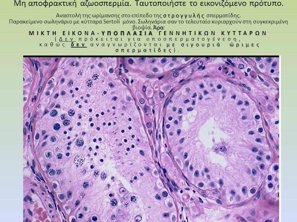 Μη αποφρακτική αζωοσπερμία. Tαυτοποιήστε το εικονιζόμενο πρότυπο. στρογγυλής Αναστολή της ωρίμανσης στο επίπεδο της στρογγυλής σπερματίδης. Άρα Παρακε
