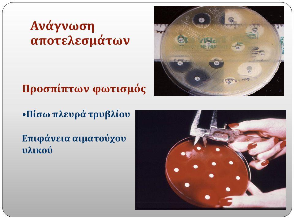 Ανάγνωση αποτελεσμάτων Προσπίπτων φωτισμός Πίσω πλευρά τρυβλίου Επιφάνεια αιματούχου υλικού