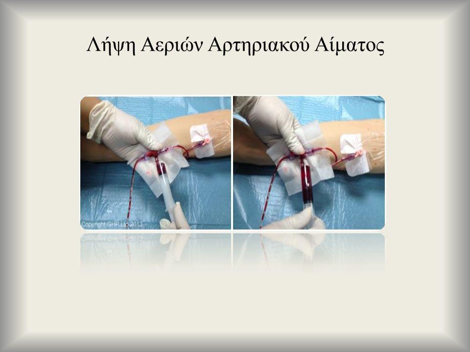 Λήψη Αεριών Αρτηριακού Αίματος