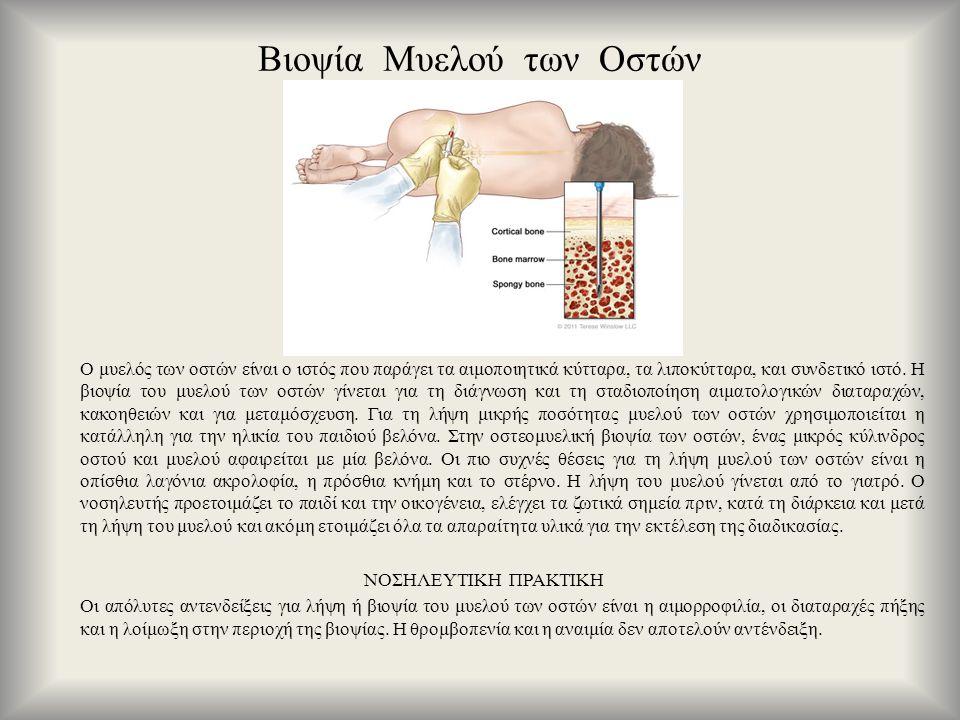 Βιοψία Μυελού των Οστών Ο μυελός των οστών είναι ο ιστός που παράγει τα αιμοποιητικά κύτταρα, τα λιποκύτταρα, και συνδετικό ιστό. Η βιοψία του μυελού