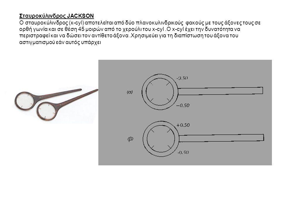 Σταυροκύλινδρος JACKSON O σταυροκύλινδρος (x-cyl) αποτελείται από δύο πλανοκυλινδρικούς φακούς με τους άξονες τους σε ορθή γωνία και σε θέση 45 μοιρών από το χερούλι του x-cyl.O x-cyl έχει την δυνατότητα να περιστραφεί και να δώσει τον αντίθετο άξονα.Χρησιμεύει για τη διαπίστωση του άξονα του αστιγματισμού εάν αυτός υπάρχει