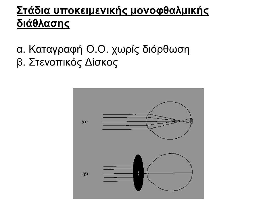 Στάδια υποκειμενικής μονοφθαλμικής διάθλασης α. Καταγραφή Ο.Ο. χωρίς διόρθωση β. Στενοπικός Δίσκος