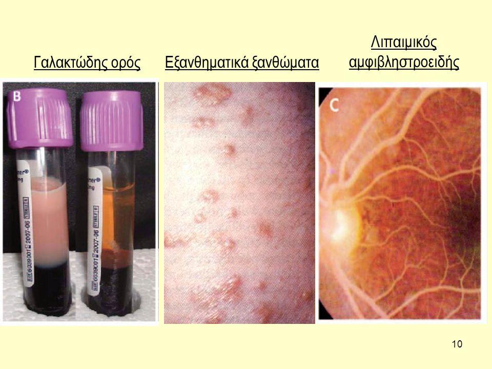 10 Γαλακτώδης ορόςΕξανθηματικά ξανθώματα Λιπαιμικός αμφιβληστροειδής