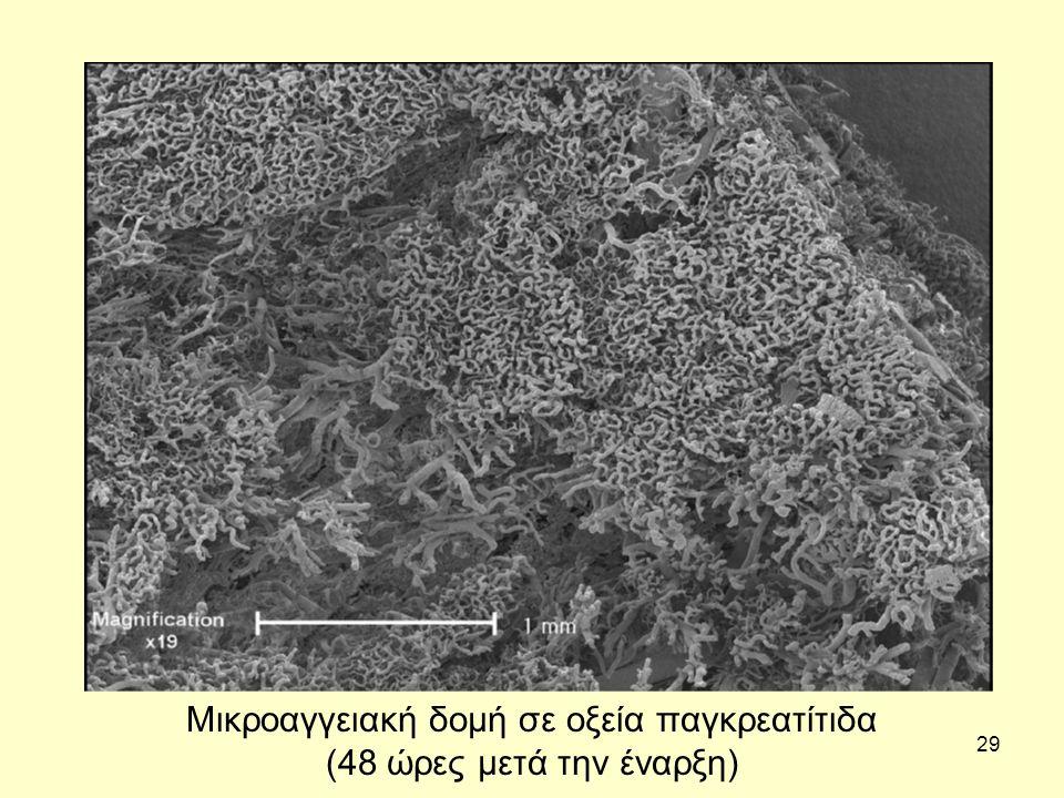 29 Μικροαγγειακή δομή σε οξεία παγκρεατίτιδα (48 ώρες μετά την έναρξη)