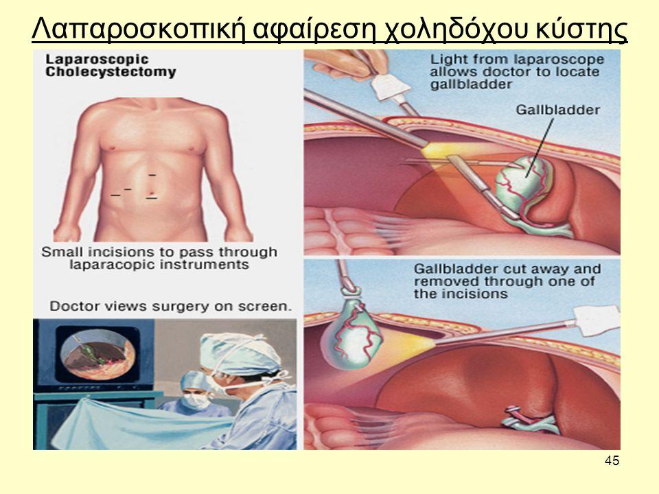 45 Λαπαροσκοπική αφαίρεση χοληδόχου κύστης
