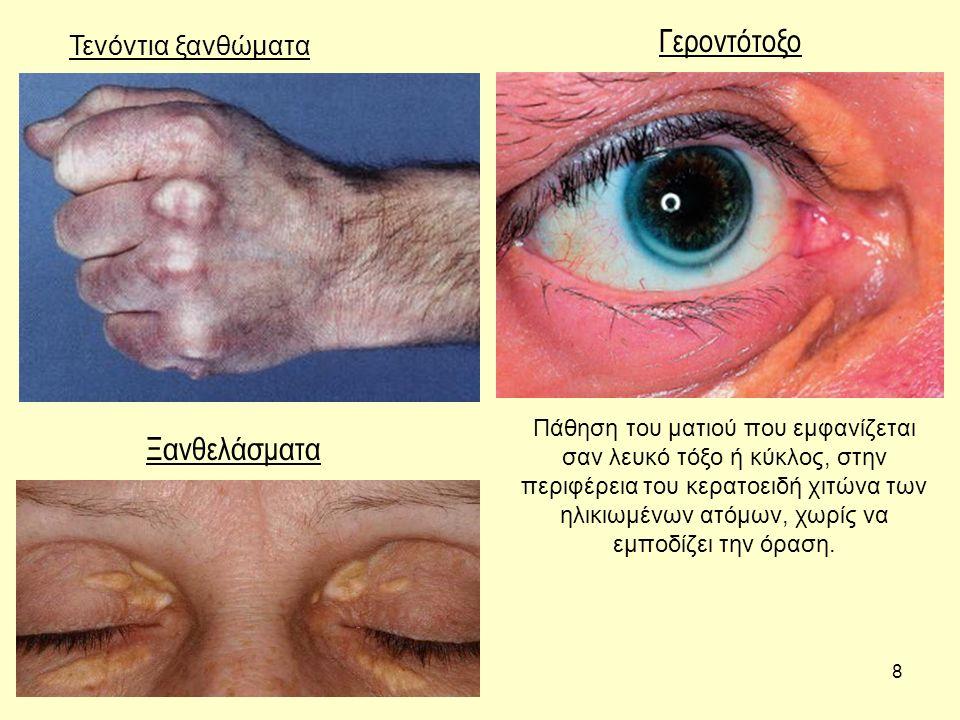 8 Τενόντια ξανθώματα Γεροντότοξο Ξανθελάσματα Πάθηση του ματιού που εμφανίζεται σαν λευκό τόξο ή κύκλος, στην περιφέρεια του κερατοειδή χιτώνα των ηλι