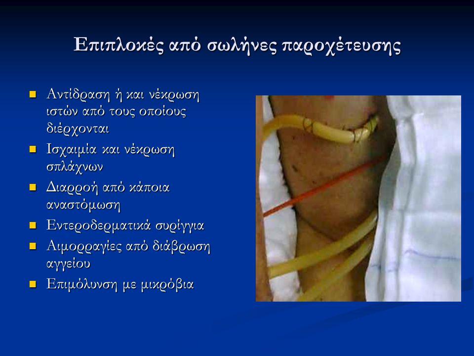Επιπλοκές από σωλήνες παροχέτευσης Αντίδραση ή και νέκρωση ιστών από τους οποίους διέρχονται Αντίδραση ή και νέκρωση ιστών από τους οποίους διέρχονται Ισχαιμία και νέκρωση σπλάχνων Ισχαιμία και νέκρωση σπλάχνων Διαρροή από κάποια αναστόμωση Διαρροή από κάποια αναστόμωση Εντεροδερματικά συρίγγια Εντεροδερματικά συρίγγια Αιμορραγίες από διάβρωση αγγείου Αιμορραγίες από διάβρωση αγγείου Επιμόλυνση με μικρόβια Επιμόλυνση με μικρόβια